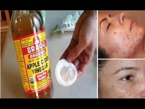 Limpia tu rostro con vinagre de manzana y mira lo que sucede
