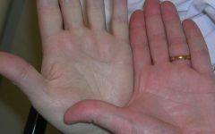 Anemia Perniciosa – O que é, Sintomas e Tratamentos