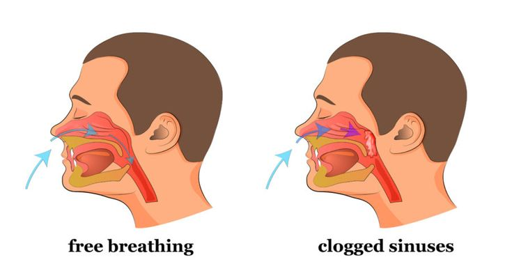 Do You Have a Stuffed Nose Or Clogged Sinuses? This Simple Trick Will Clear It In a Few Seconds