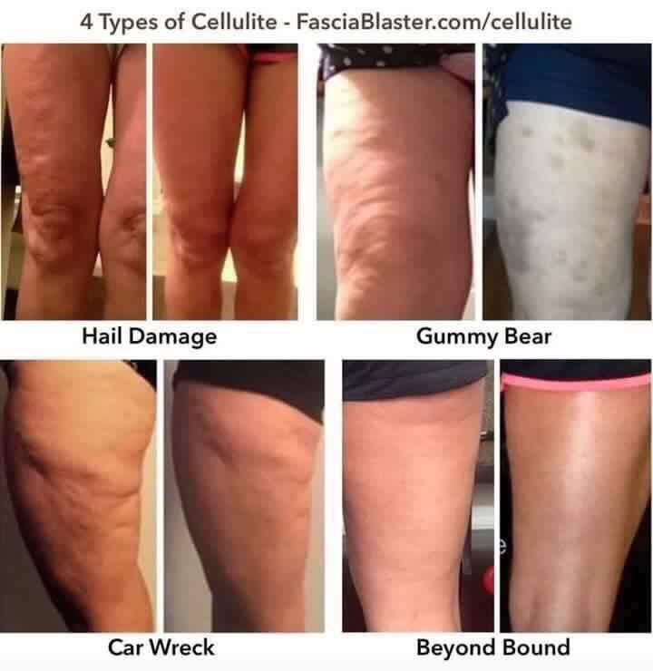 "There they are!  My Fascia Blasters!  This journey.. OY!! A few months ago, I happened upon a Facebook video from Ashley Black Guru and she was talking about the ""cellulite myth"".  I  w…"