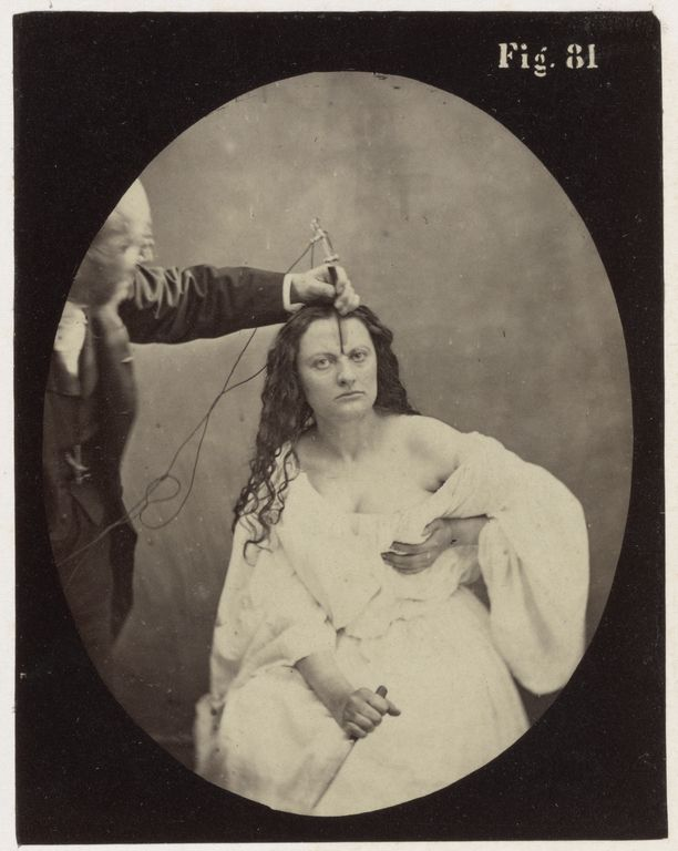 Electro-physiologie Photographique, Fig. 81  Guillaume-Benjamin Duchenne  1876  Albumen silver print  the getty
