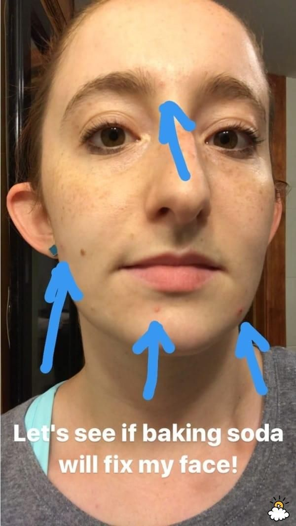 I Smeared Baking Soda On My Face Every Night For A Week Here S How My Skin Looked 7 Days Later Bad Acne Skin Care Women Natural Beauty Remedies