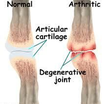 Are you looking for more information about Treating Degenerative Arthritis ? Visit this site below for  your expectation information.