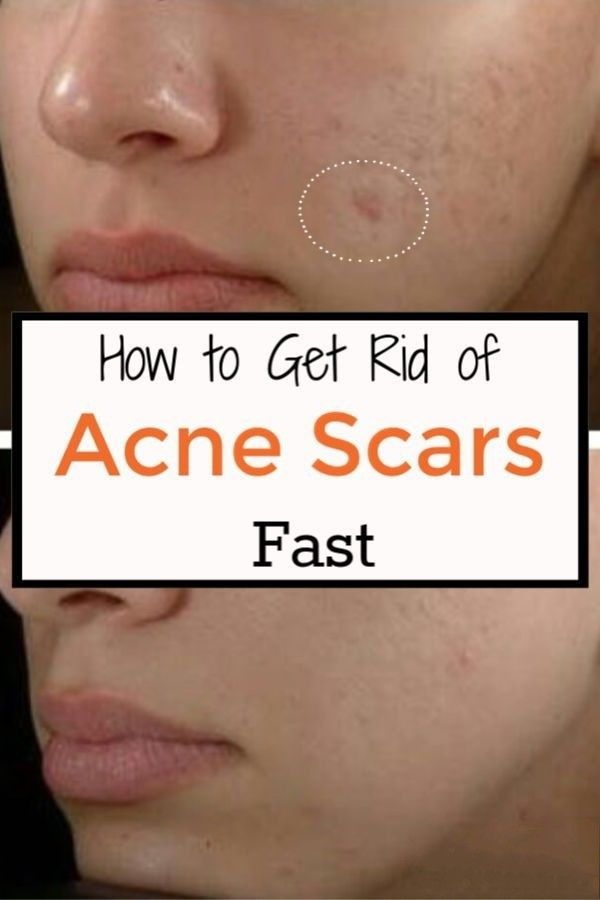 Can You Get Acne On Your Legs Pin On Beauty