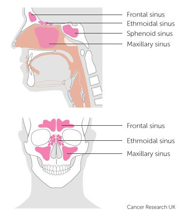 1000 ideas about paranasal sinuses on pinterest nasal. Black Bedroom Furniture Sets. Home Design Ideas