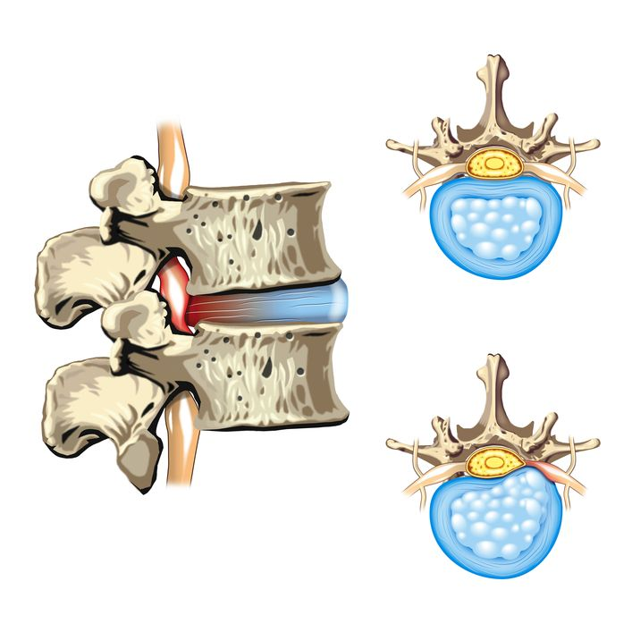 114 best hernia discal images on pinterest spinal disc for Silla oficina hernia discal