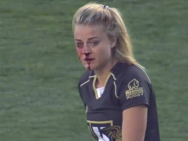 Female rugby player breaks nose, continues playing, proceeds to tackle two more players - International - Rugby Union - The Independent