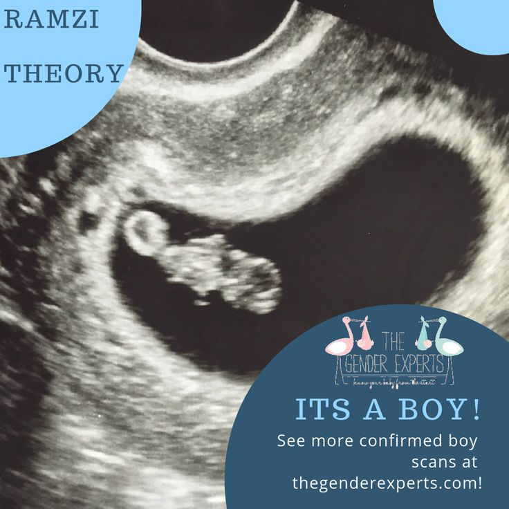 The Ramzi Theory Gender Prediction Guide 2019 - The Gender ...