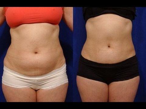 Você Não É Gorda!. Seu Estômago Que É Inchado.