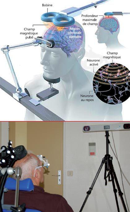 Je teste l'électro-stimulation trans-crânienne, l'année prochaine au CHU de Nantes, je ne manquerais pas de partager les résultats obtenus ou pas..... J. NIZARD, E. DE CHAUVIGNY, M. HELBERT et coll., Centre d'évaluation et de traitement de la douleur, service de neurochirurgie, Pôle Neurosciences, CHU de Nantes La stimulation magnétique transcrânienne, technique de neurostimulation non invasive et ambulatoire,...