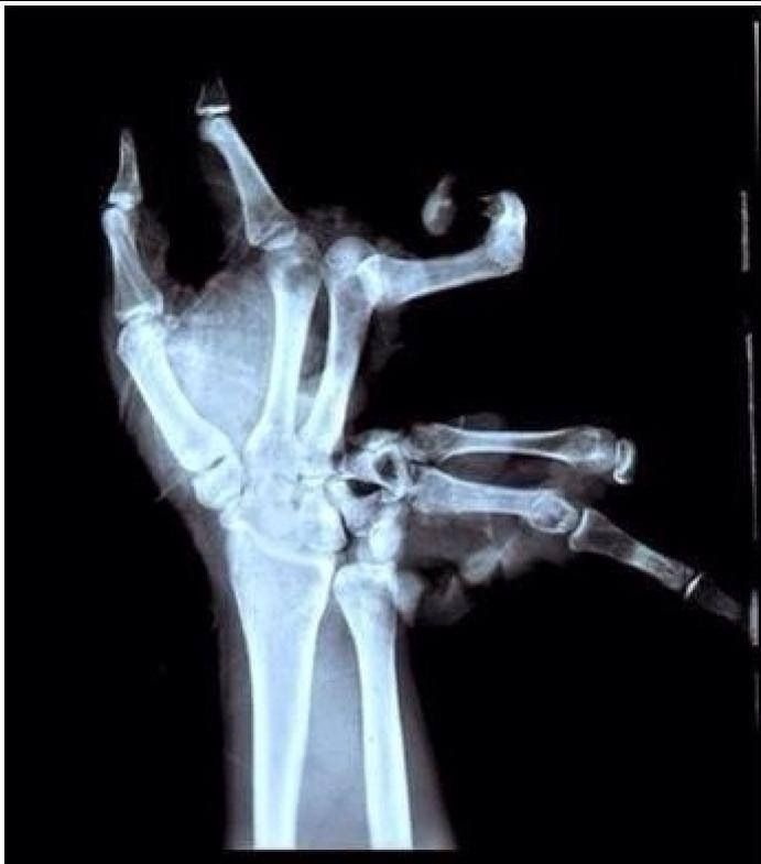 I'm getting better at viewing x-rays... I think I can see where the problem is.