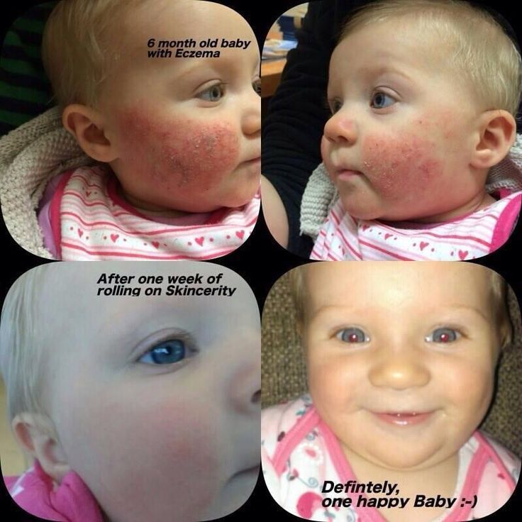 Before & After Eczema - Skincerity. Safe for the little ones too