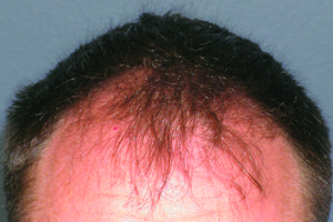 ARTAS Robotics Hair Transplant: Before photo of hairline. See the after picture here - http://www.pinterest.com/pin/86764730297054704/