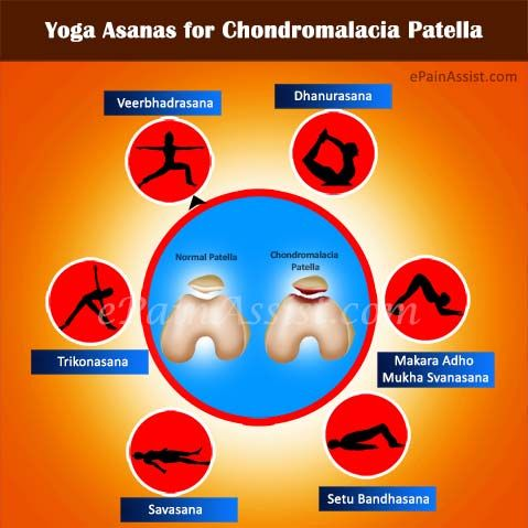 25+ best ideas about chondromalacia patellae on pinterest | knee, Skeleton