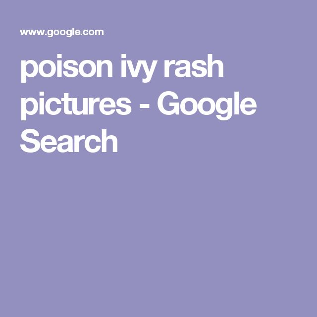 poison ivy rash pictures - Google Search