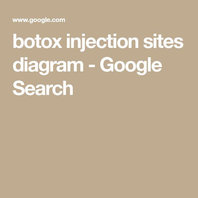 botox injection sites diagram - Google Search