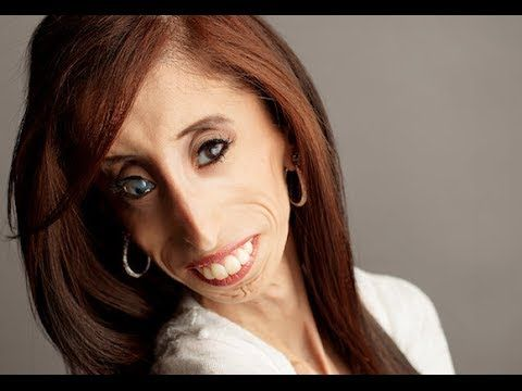 ▶ Lizzie Velasquez | La mujer más bella del mundo | Discurso Motivacional. - YouTube