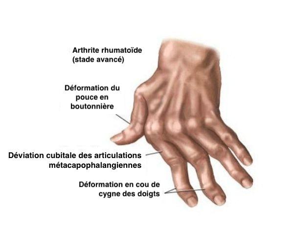 Les symptômes de l'arthrite des mains peuvent se traiter naturellement, grâce aux remèdes naturels que nous allons vous donner dans cet article.