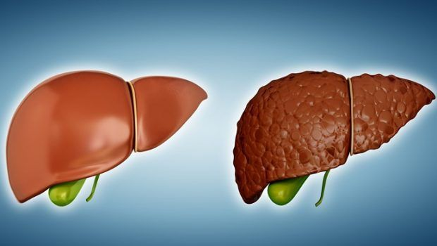 Healthy Diet For Liver Cirrhosis Patient Good And Bad Foods To