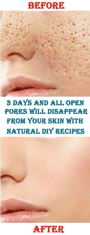 3 Tage und alle offenen Poren verschwinden mit natürlichen Rezepten aus Ihrer Haut