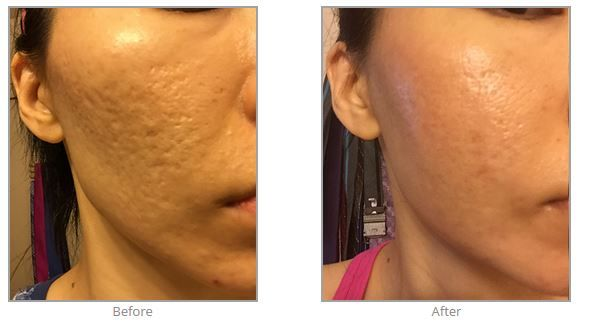 Acne Laser Treatment Seattle
