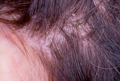 Tratamiento para los eccemas en el cuero cabelludo