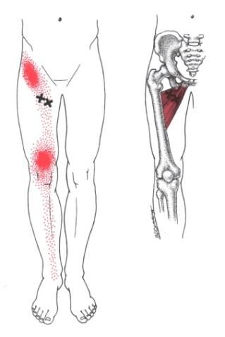 Anterior Knee Pain - Primary Symptoms @ Adductor Longus and Brevis
