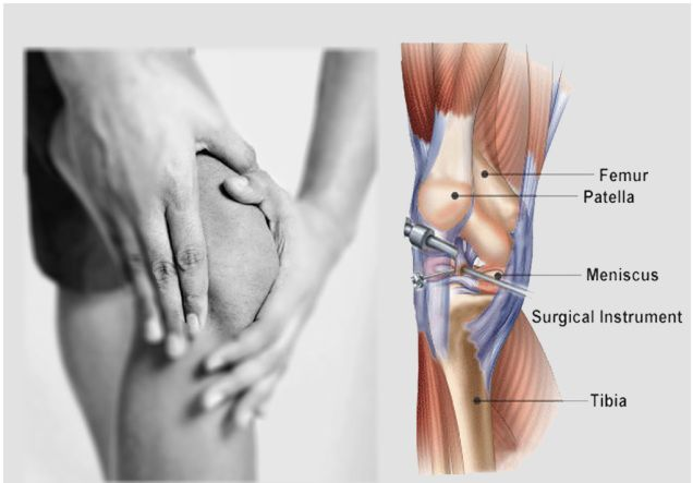 Best Knee Surgeon in India performing Knee Reconstruction Surgery : Treatments Available And Competency Of Surgeon