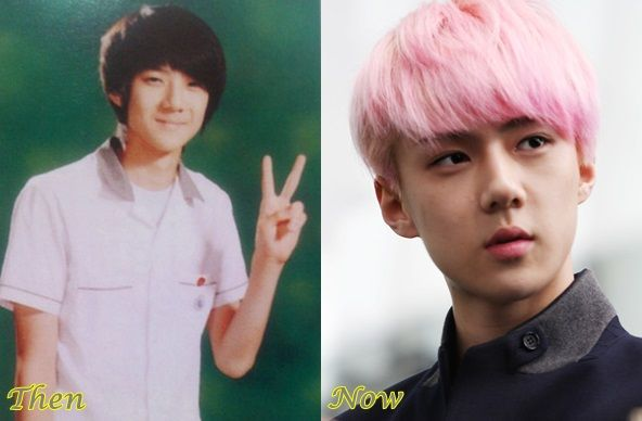 Sehun EXO Plastic Surgery Before And After Photos