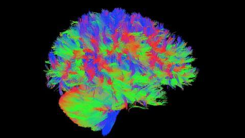 Depuis un an, à Lyon, des experts en neuropsychiatrie tentent de comprendre le fonctionnement cérébral des enfants à haut potentiel ou précoces. Une étude de portée internationale dont les conclusions seront exploitées par le monde scientifique et éducatif. #HP #Arborescence #ydem
