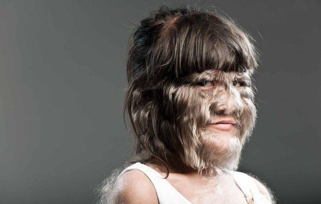 La femme la plus poilue du monde est une adolescente qui vit en Thaïlande. Elle est entrée au Guinness des Records en 2010.