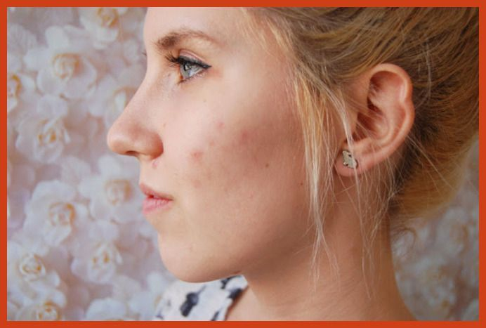 Acne Scar Removal - Acne and Inflammation -- Click on the image for additional details. #hamamat #acneremover,