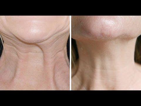 Remède naturel contre le relâchement de la peau - YouTube