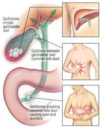 A biliary obstruction is a blockage or constriction of a bile duct http://www.myehealth.in/bile_duct_obstruction