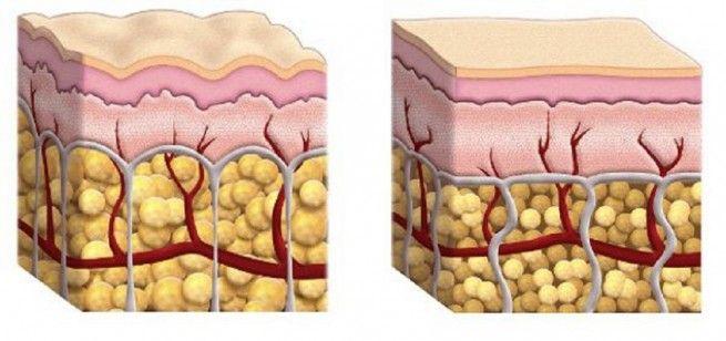 comment-perdre-la-cellulite-naturellementen-4-recettes