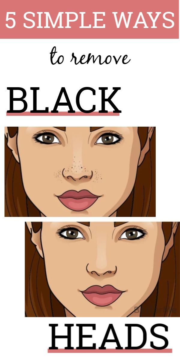 5 simple and fastest way to remove blackheads at home