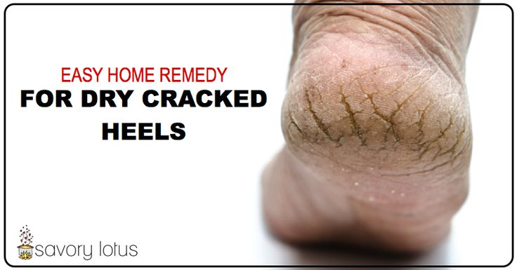 dry heels, cracked heels, how to heal, DIY - thankfully, mine are just a little dry. Lord help me if they ever got THAT dry.