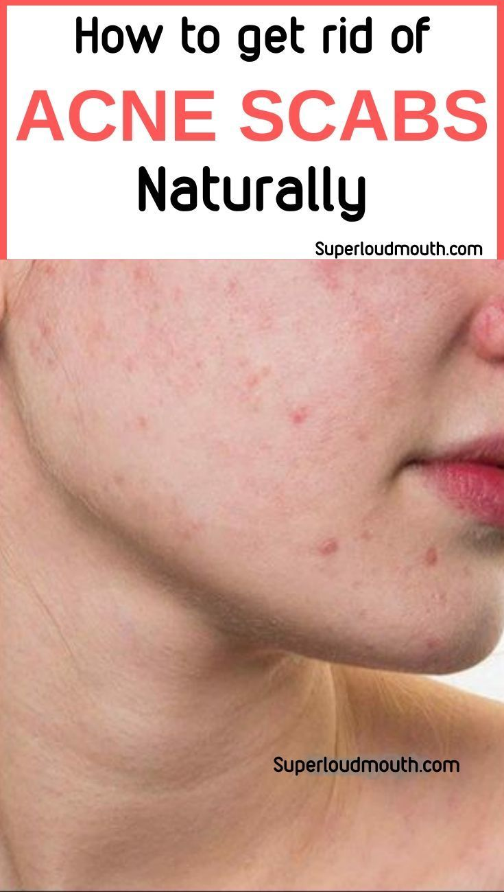 40 best ways to get rid of acne scabs overnight diy