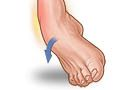 Ankle Sprain | University of Michigan Health System