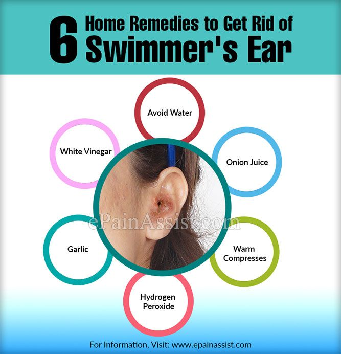 Best 25 swimmers ear ideas on pinterest swimmers ear remedies what is swimmer 39 s ear and ear for What causes ear infections from swimming pools