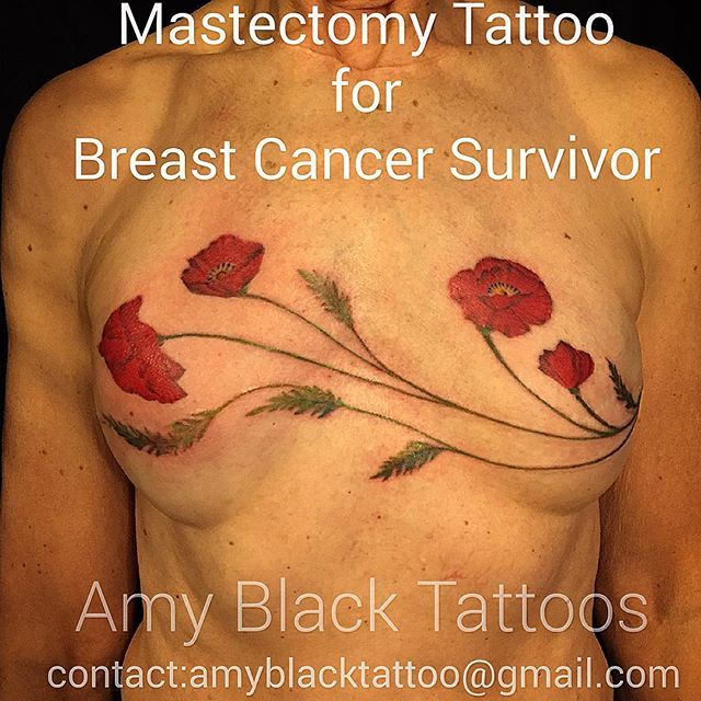 Mastectomy Tattoo for Breast Cancer Survivor ❤️ she wanted pretty poppies #mastectomy #mastectomytattoo #pinkinkfund #supportpinkinkfund #breastcancer #brca #cancerwarrior #cancersurvivor #amyblacktattoos