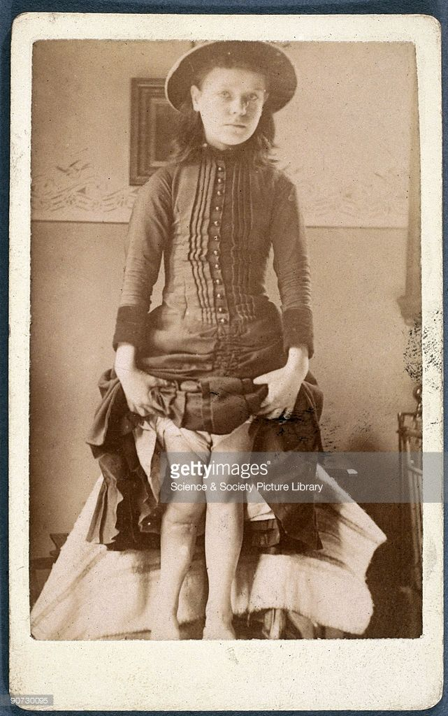 Photograph of a girl displaying legs deformed by rickets ...