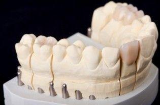 Zahnkrone ersetzten, künstlicher Zahnersatz
