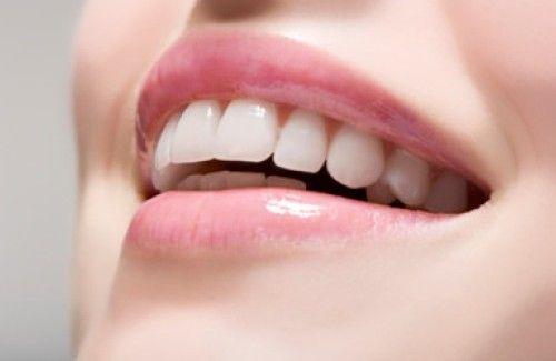 Cómo tener una sonrisa perfecta