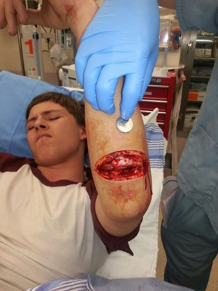 Slashed by a straight razor ~ MasterCheeef | EMS | Ems ...