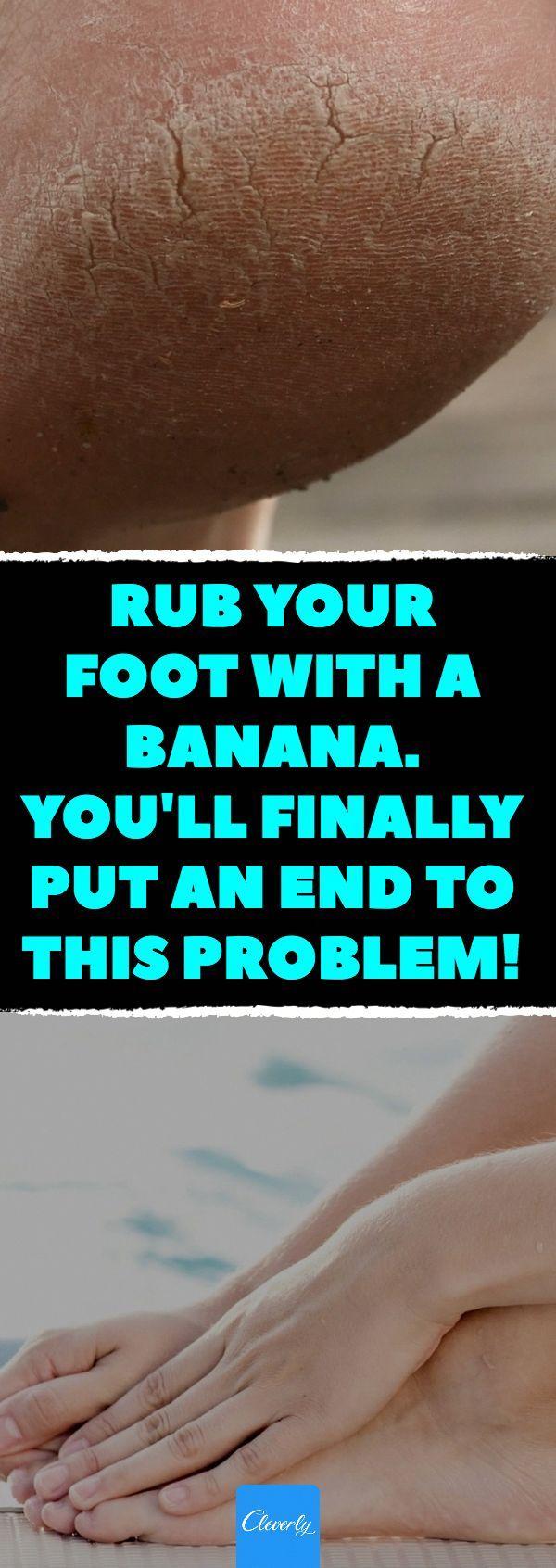 Viele Menschen haben dieses Problem und es kann so schmerzhaft sein! Hier ist, wie man es n b…