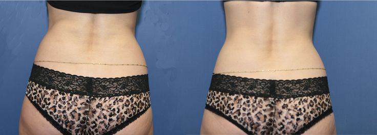 """Before and after Zerona laser painless fat reduction.  This patient lost 1 1/2"""" from her hip rolls.Reduce Weights, Hip Rolls, Fat Reduction, Healthy Fat, Healthy Weights, Fat Loss, Painless Fat, Lose Weights, Belly Fat"""
