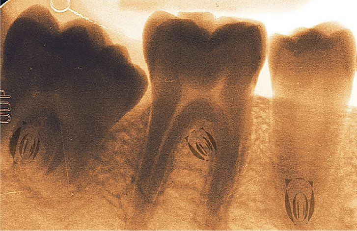 How To Naturally Heal Cavities ---- http://www.bodymindsoulspirit.com/how-to-naturally-heal-cavities/ ---
