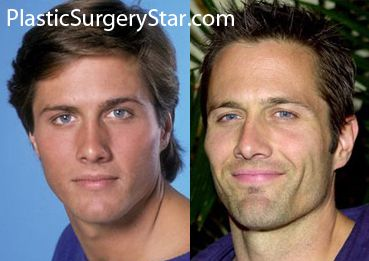 rob estes plastic surgery