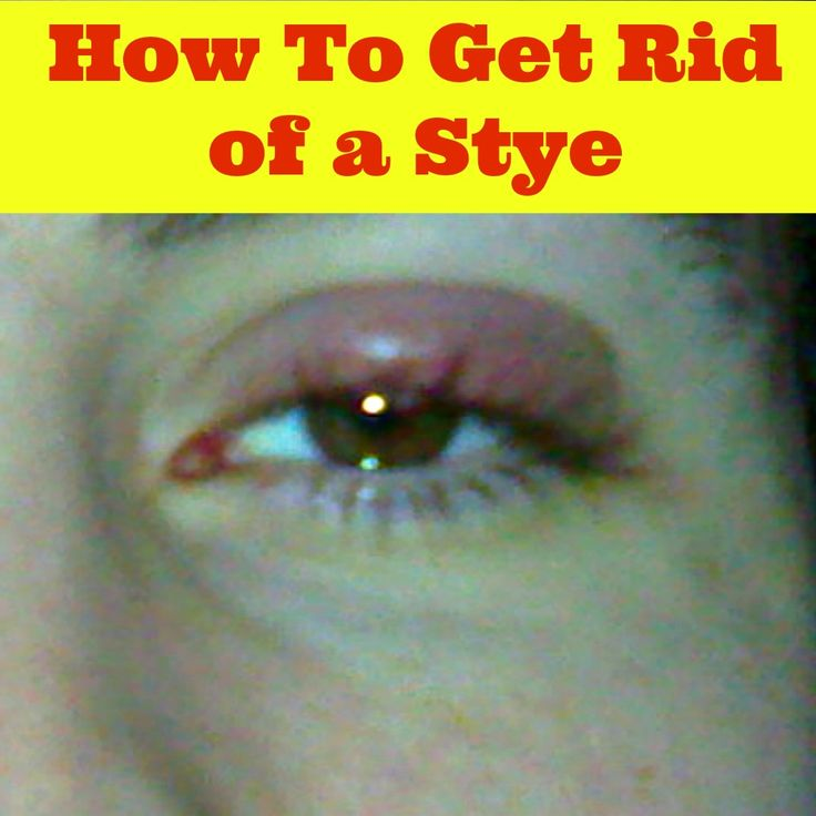 how to get rid of the veins in your eyes